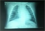 Trẻ 3 tháng tuổi bị dị dạng nang phổi