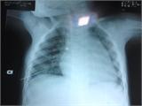 Mẹ sơ ý, con bị kim đâm thủng phổi