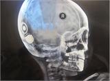 Cấy ghép ốc tai điện tử thành công cho hai bệnh nhi khiếm thính đầu tiên