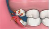 Sai lầm từ việc điều trị răng khôn, nhiều người mất mạng