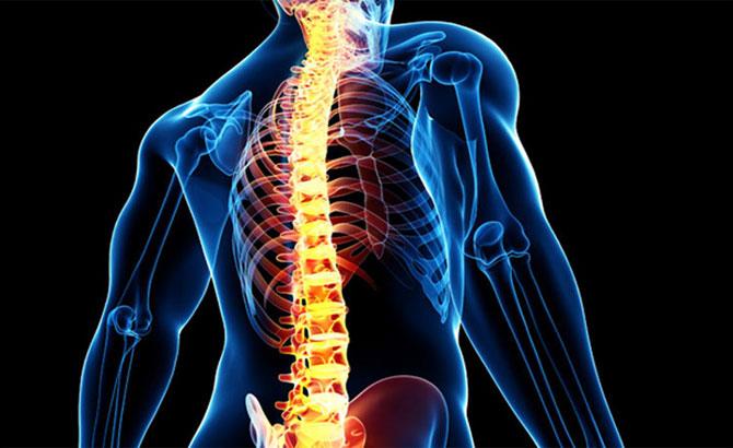 Bệnh thoái hóa cột sống, chữa khỏi, sức khỏe