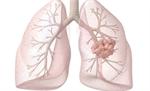 8 dấu hiệu ung thư phổi không nên bỏ qua