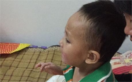 Cháu Đỗ Quang Vinh bị bỏng nặng, cần giúp đỡ khẩn cấp