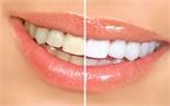 Các phương pháp tẩy trắng răng