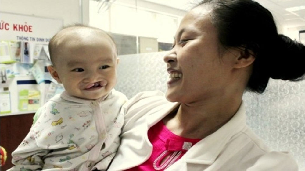 Nearly 300 children with cleft lips and palates to receive free operations in October