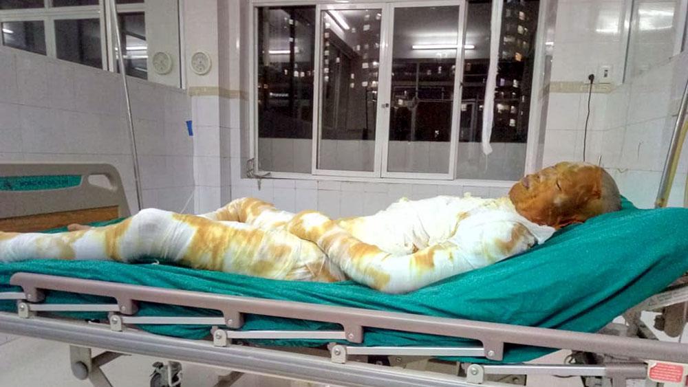 Nổ khí gas, một người bị bỏng nặng