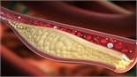 Chế độ ăn cho người bị máu nhiễm mỡ