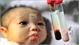 10 triệu người Việt mang gene bệnh làm suy thoái giống nòi