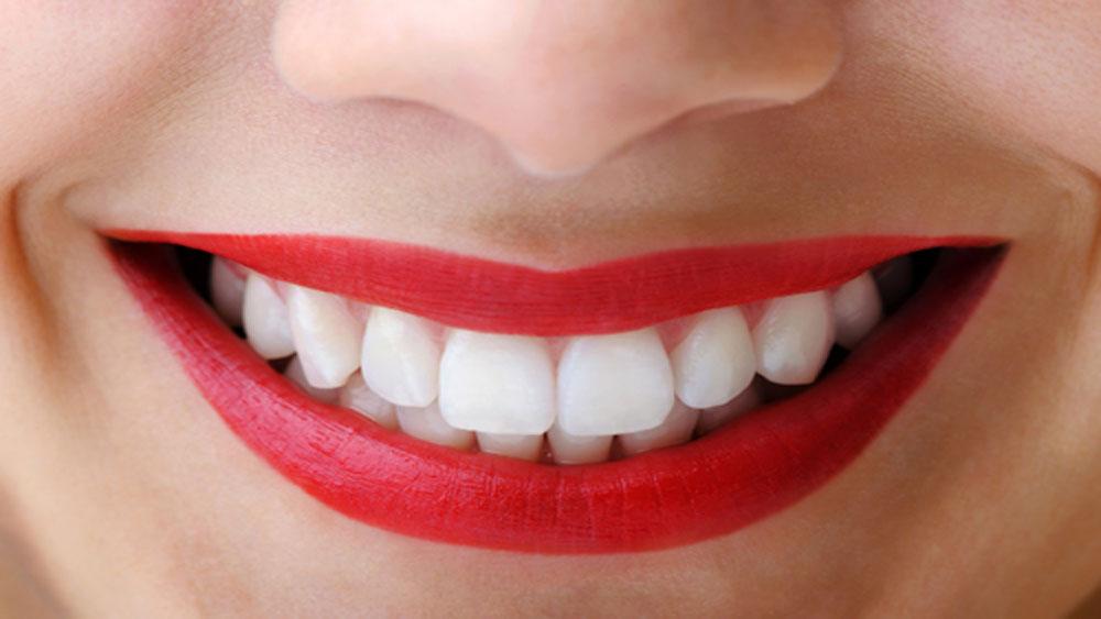 8 điều cần lưu ý trước khi làm trắng răng