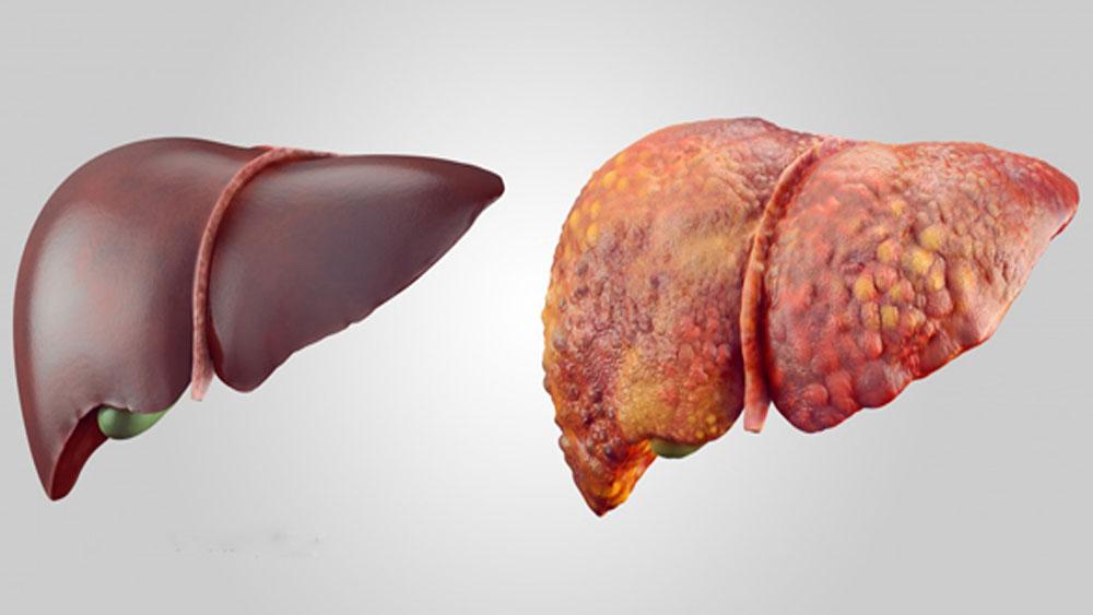 Những nguyên nhân hàng đầu gây ung thư gan