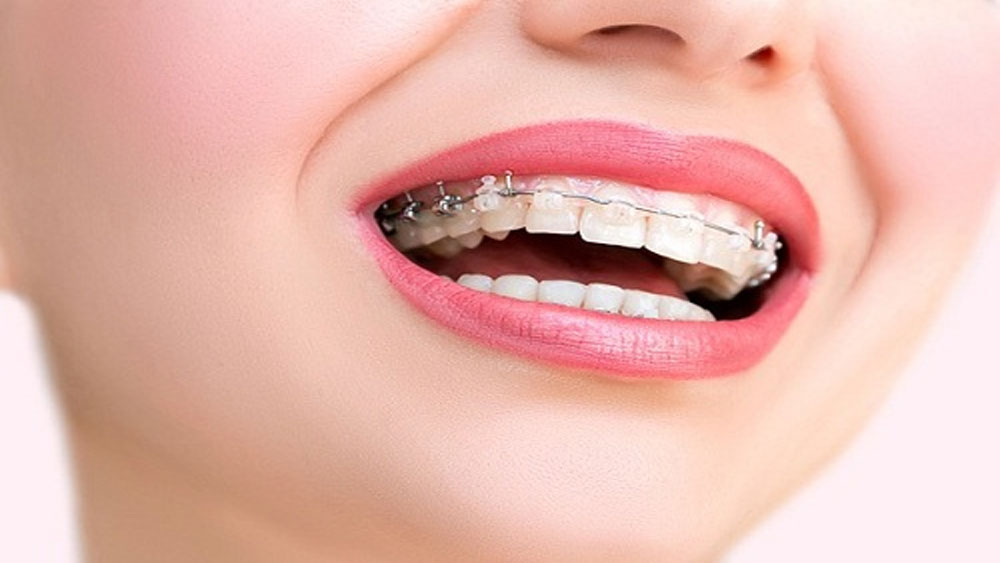 11 thực phẩm bạn không nên ăn khi niềng răng
