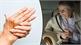 Những cách giảm đau nhức xương khớp khi trời rét buốt