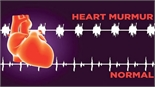 Dấu hiệu cho thấy bạn có thể mắc bệnh van tim