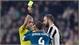 Real Madrid chịu tổn thất lớn sau chiến thắng trước Juventus