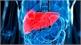 Giải pháp mới ngăn ung thư gan tái phát