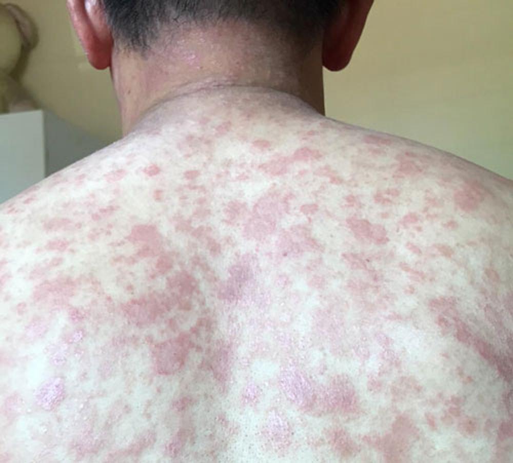 mắc bệnh viêm da, tắm ở bể bơi, viêm da cơ địa