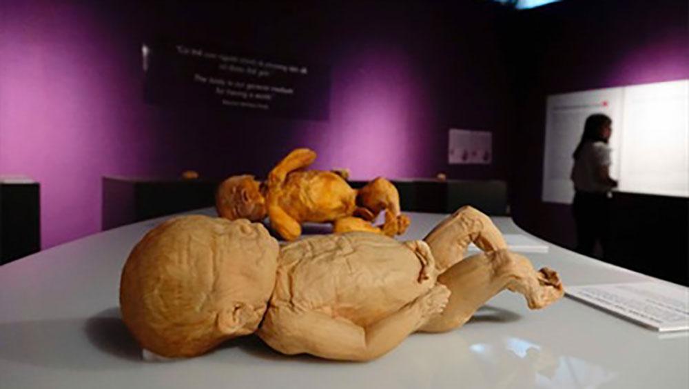 Bộ Văn hóa, triển lãm, bộ phận cơ thể người thật