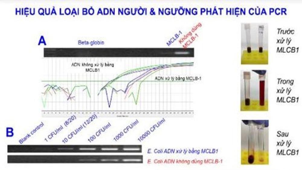 Nghiên cứu về nhiễm khuẩn huyết của Việt Nam được nhận giải thưởng Alexandre Yersin