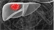 Người Việt bị ung thư gan nhiều nhất thế giới