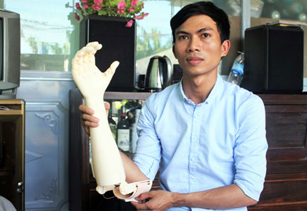 Vietnam university student, super cheap, prosthetic arm, 23-year-old engineering student, second prize, similar products, daily activities,
