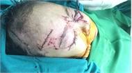 Nghệ An:  Bị chó nhà tấn công, 2 trẻ nhỏ phải nhập viện