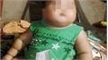 Bé trai 22 tháng tử vong sau khi truyền dịch