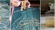 Phát hiện ổ bệnh lợn gạo tại Bình Phước: Nhiều người có thể đã mắc bệnh