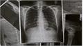 12 dấu hiệu cảnh báo phổi của bạn đang gặp vấn đề