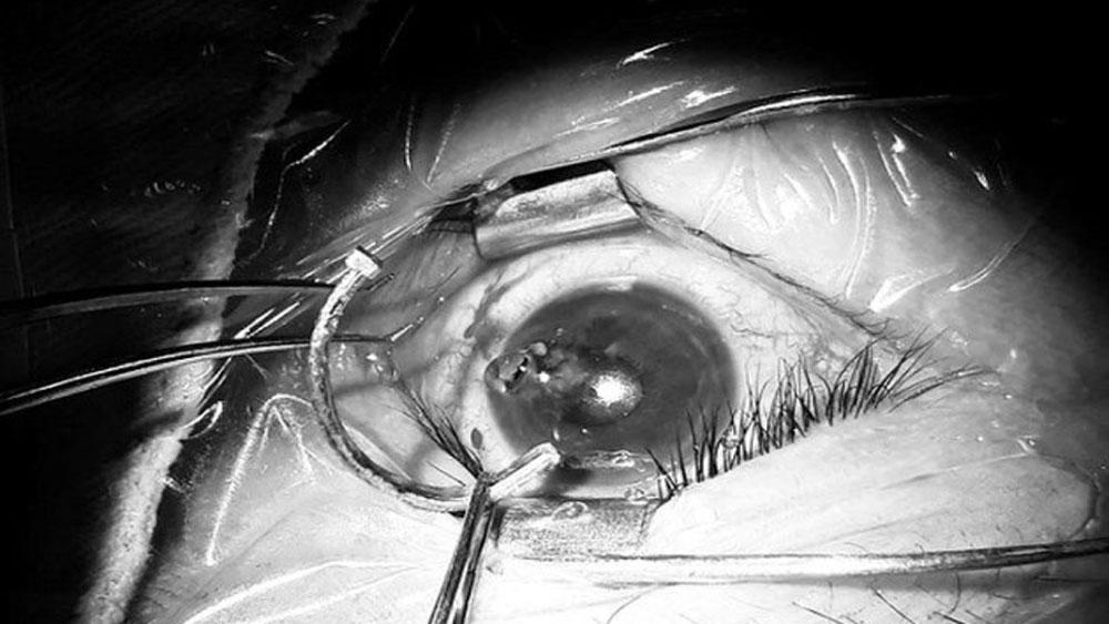 Kinh hoàng, đinh dài 2,5 cm, cắm sâu vào mắt