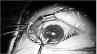 Cấp cứu bệnh nhân bị đinh dài 2,5 cm cắm sâu vào mắt