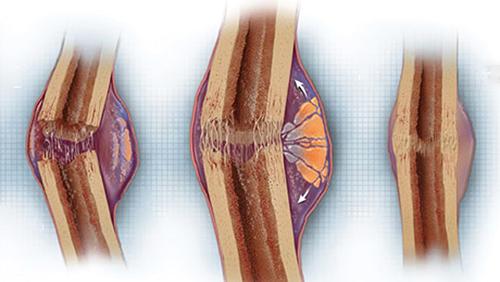 Quá trình liền xương khi bị rạn nứt hoặc gãy