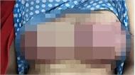 Bơm silicon nâng ngực, người phụ nữ hoại tử vòng 1 sau 3 ngày