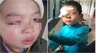 Cô giáo xứ Lạng bị tố dùng thước đánh học sinh 'teo mắt'