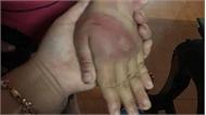 Bé gái 8 tuổi bị bố đánh bầm dập khắp cơ thể