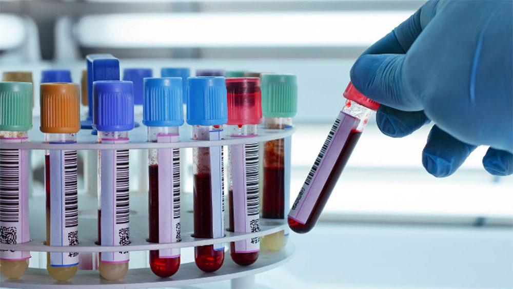 Bộ Y tế yêu cầu dừng lấy máu xét nghiệm Elisa để chẩn đoán sán lợn