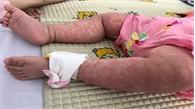 WHO: Bệnh sởi bùng phát ở quy mô mạnh nhất trong lịch sử nhân loại