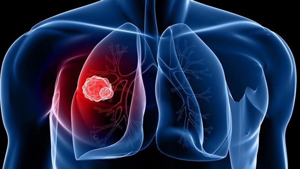 Dấu hiệu sớm, bệnh ung thư, 17.000 người Việt chết, ung thư mỗi năm