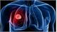 Những nguyên nhân phổ biến gây ung thư phổi