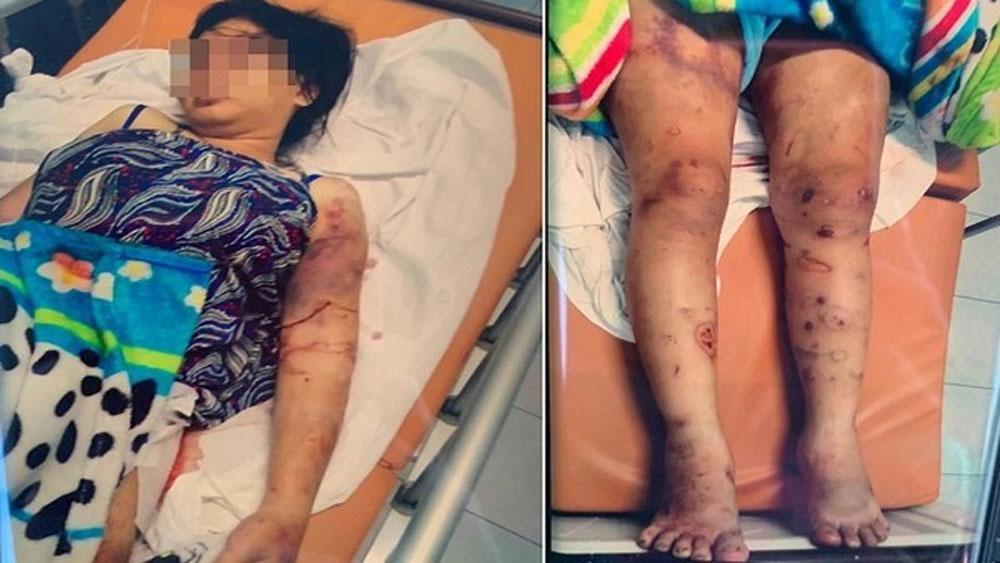 Bắt giam đối tượng đánh cô gái 18 tuổi sẩy thai