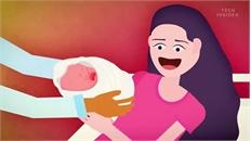 Não của người mẹ thay đổi như thế nào sau khi sinh con?
