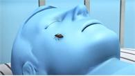 Nguy cơ nhiễm ký sinh trùng từ bọ xít hút máu người