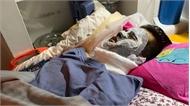 Việt kiều bị tạt axit, cắt gân chân: Công bố đặc điểm nhận dạng 2 nghi phạm