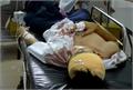 Bắc Giang: Một nhóm đối tượng vào công ty chém hai công nhân bị thương