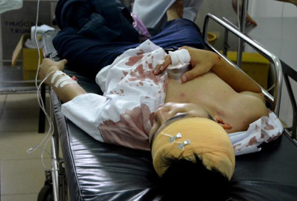 Công ty Younji Electronics Vina, xã Tiền Phong, Huyện Yên Dũng, công nhân, bị thương