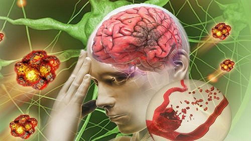 Tai biến mạch máu não nhẹ, cách điều trị, não bị thiếu máu đột ngột