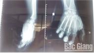 Điện thoại iPhone phát nổ khi đang sạc pin: Bệnh nhân đã xuất viện