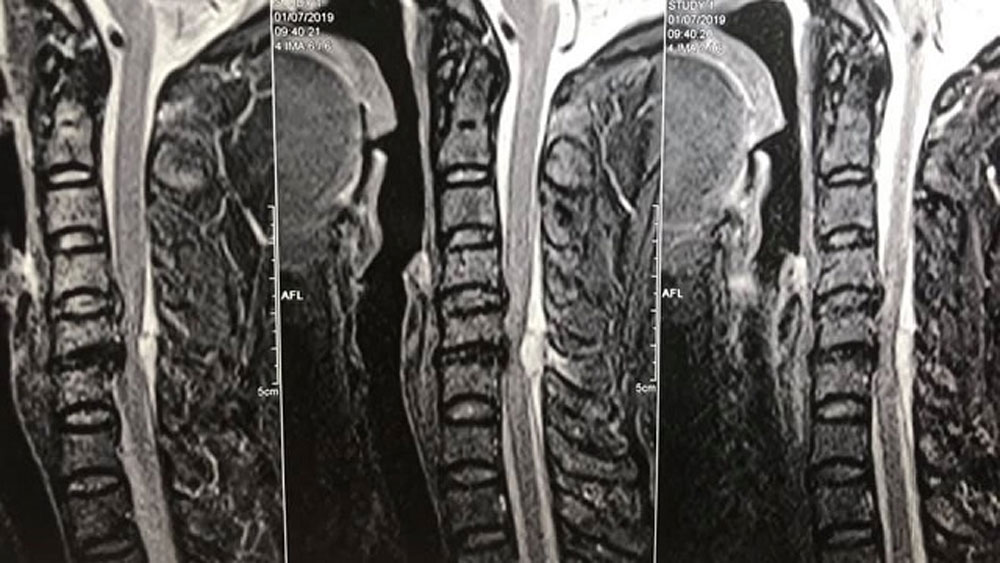 Sau giác hơi, một bệnh nhân suýt phải ngồi xe lăn suốt đời