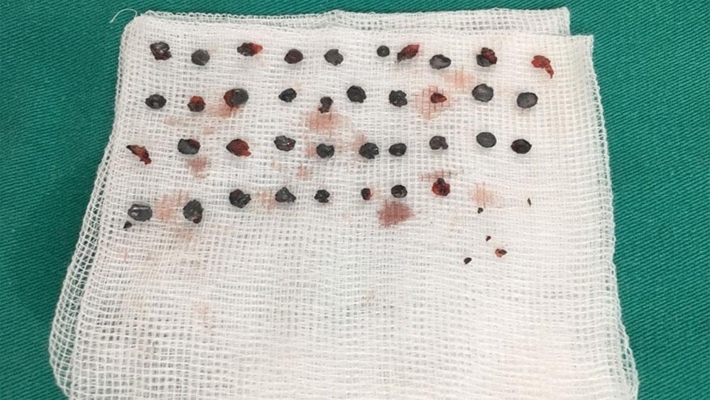 7 tháng, bị bắn, thanh niên, 39 viên đạn hoa cải, Bệnh viện TW Quân đội 108