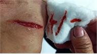 9 người dân Cà Mau bị chó dại tấn công tại chợ