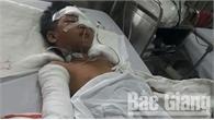 Sức khỏe cháu bé ở Sơn Động bị bác chém trọng thương dần ổn định